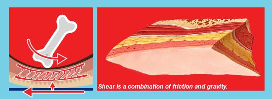 Shear GB